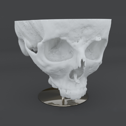 Accurate Skull Render Produced from MRI Scan Data